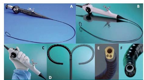 A – Společnost Karl Storz Endoscopy jako první v roce 1994 provedla miniaturizaci flexibilního ureteroskopu s vláknitou optikou a aktivní flexí z 10 na 7,5 F. B – Poslední inovace zahrnují digitální obraz a lehčí a ergonomičtější (C) rukojeť a pouze jediný manipulační kabel. D – Digitální ureteroskop disponuje obousměrnou, aktivní, intuitivní flexí v rozsahu 270<sup>°</sup> stejně jako jeho optický předchůdce. E, F – Přímé srovnání distálních konců optického endoskopu Flex-X-2 a digitálního endoskopu Flex X-C. Digitální endoskop k osvětlení využívá namísto svazku optických vláken (E) dvě miniaturní LED diody přiléhající k distálním čočkám (F), což umožňuje minimalizovat vznik stínu a zvyšuje hloubku zobrazovaného pole. Oba endoskopy jsou vybaveny bílou keramickou vložkou, která chrání pracovní kanál před poškozením laserem.