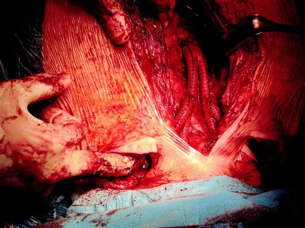 Final structure: aorto-bicarotic-bisubclavian reconstruction Obr. 3. Konečný stav: aorto-bikaroticko-bisubklaviální rekonstrukce