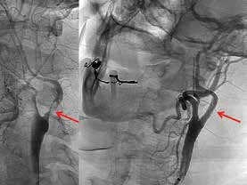 Vlevo je stav před intervencí: šipka ukazuje na exulcerovanou kritickou stenózu s trombem na vnitřní karotidě těsně nad bifurkací. Vpravo šipka ukazuje totéž místo po implantaci stentu.