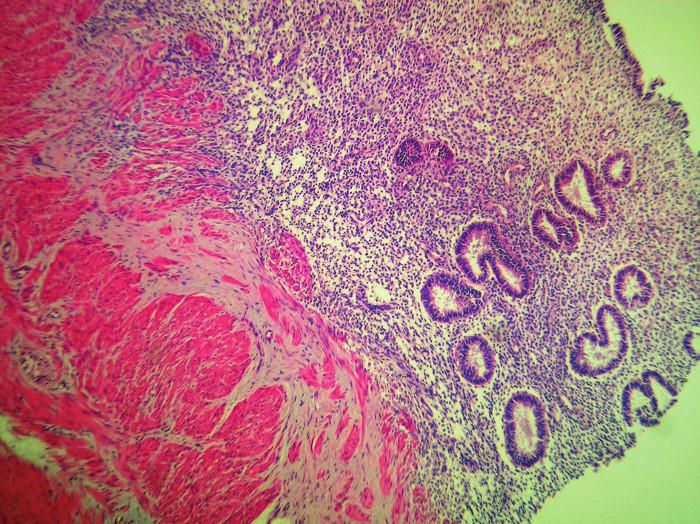 Stena hrubého čreva, na seróznom povrchu a v muscularis propria so štruktúrami endometriózy, HE 40x Fig. 3: Intestinal tissue infiltrated with endometrial cells and stroma, HE 40x