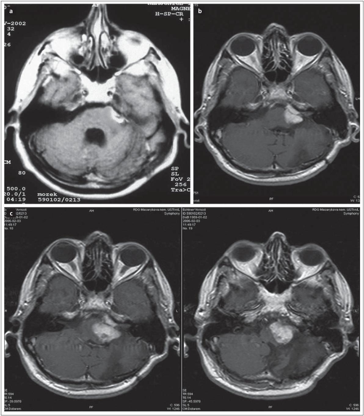 Obr. 7a) Subtotální resekce vestibulárního schwannomu. Obr. 7b) Dva roky po operaci progrese rezidua a indikace LGK. Obr. 7c) Progrese nádoru dva roky po LGK, nutnost reoperace.