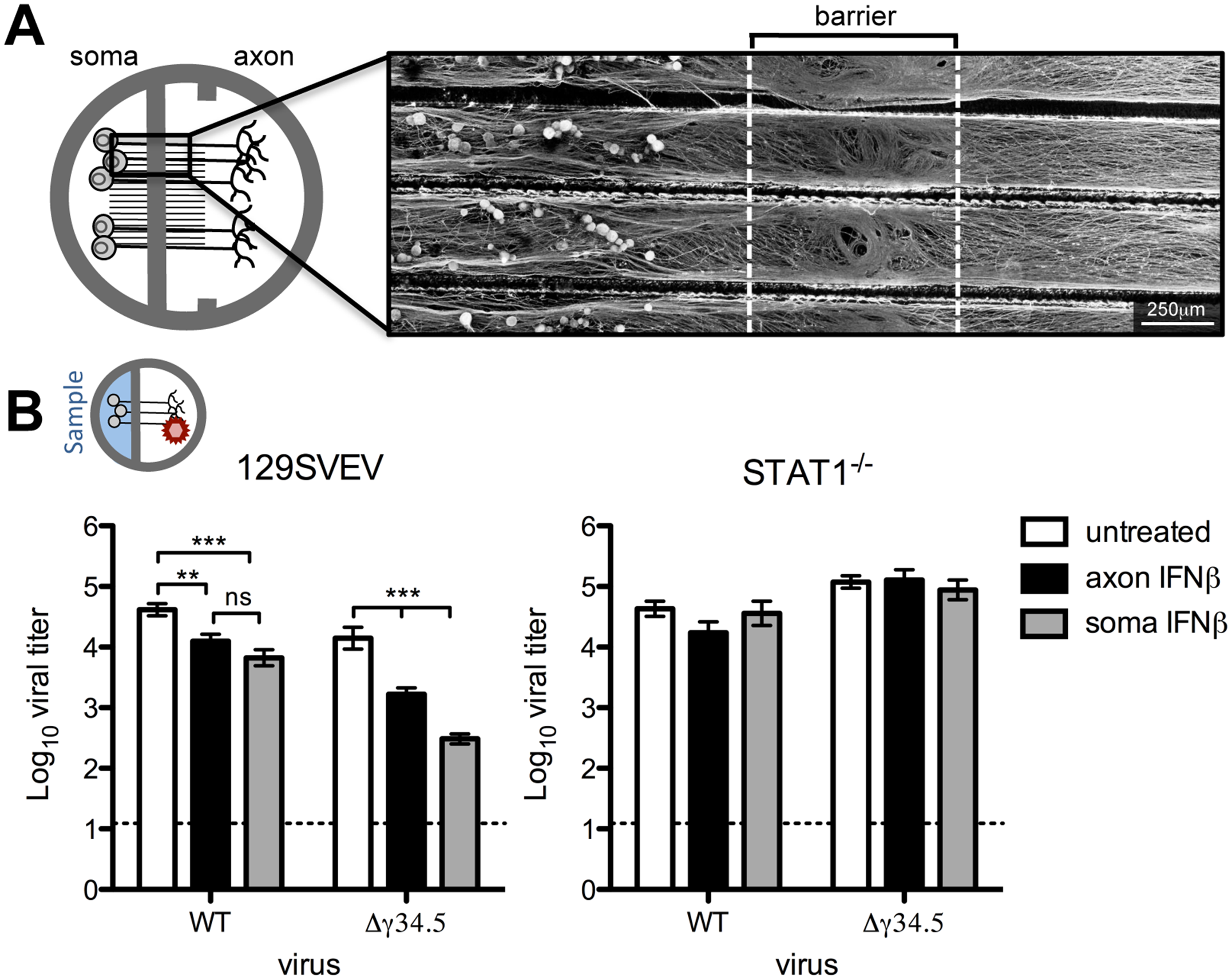 Paracrine IFNβ signaling at the cell body and distal axon reduces HSV-1 titers upon axonal infection.