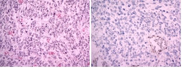 A Atypický teratoidní/rhabdoidní tumor (AT/RT), WHO grade IV. Hypercelulární nádor sestává ze solidně uspořádaných drobných protáhlých buněk s bledou cytoplazmou, které místy svou morfologií a rytmickým uspořádáním připomínaly meduloblastom. V nádoru byly početné mitózy. (hematoxylin-eozin, originální zvětšení x400). B Imunohistochemický průkaz proteinu INI1 je v nádorových buňkách negativní (při pozitivní vnitřní kontrole v endoteliích, originální zvětšení x400). Image 2 A Atypical teratoid-rhabdoid tumor (AT/RT), WHO grade IV. Hypercellular tumor containing oval cells with pale cytoplasm arranged in a solid pattern. Their morphology and arrangement resemble cells of medulloblastoma. Numerous mitosis were seen. (H&E x400) Image 2 B: Imunohistochemical negativity of INI1 protein in tumour cells (retained positivity in endothelial cells, x400)