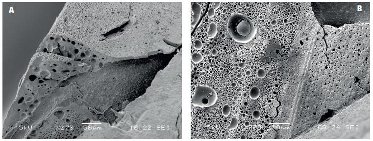 Spodní část kompozitní výplně bondované adhezivem IBO po odstranění skloviny a dentinu demineralizací a deproteinizací pomocí HCl a NaOCl: A) rozsáhlé oblasti porozity ve vrstvě adheziva na spodině výplně v kontaktu s dentinem, B) detail stěny kompozitní výplně s patrnými bublinkami různé velikosti, zvětšení 270 a 700x, SEM