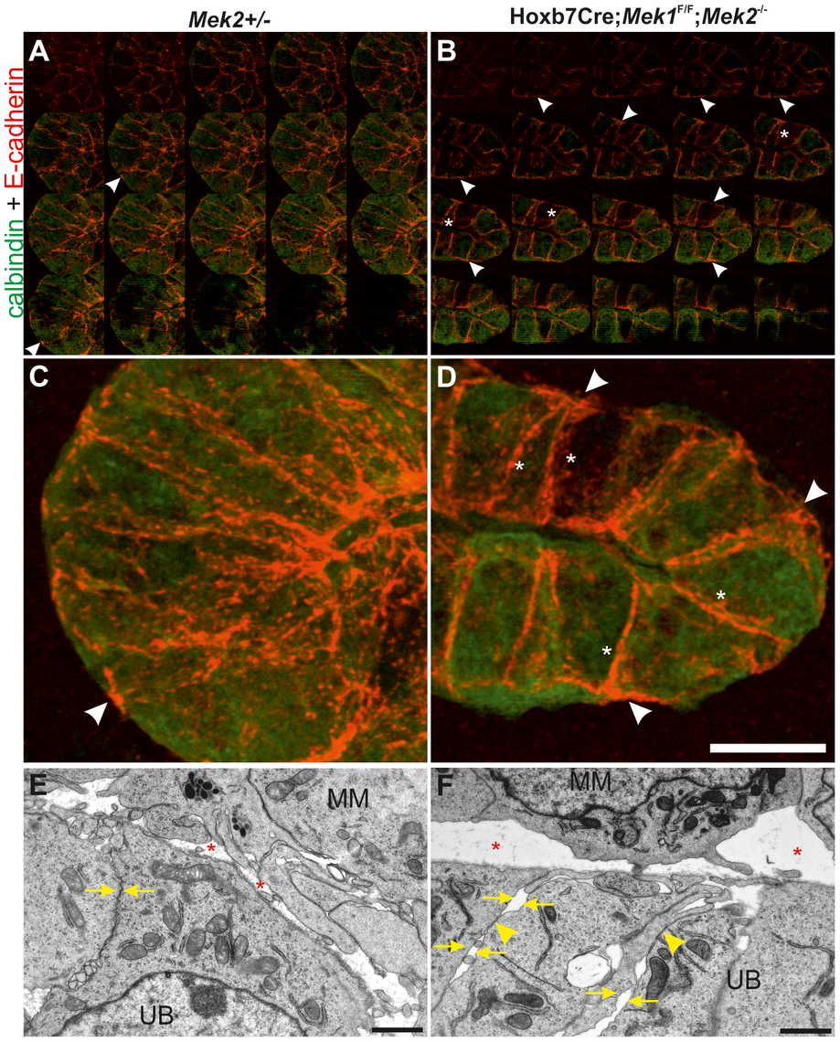 MAPK pathway activity is required for normal E-cadherin localization and epithelial cell adhesion.