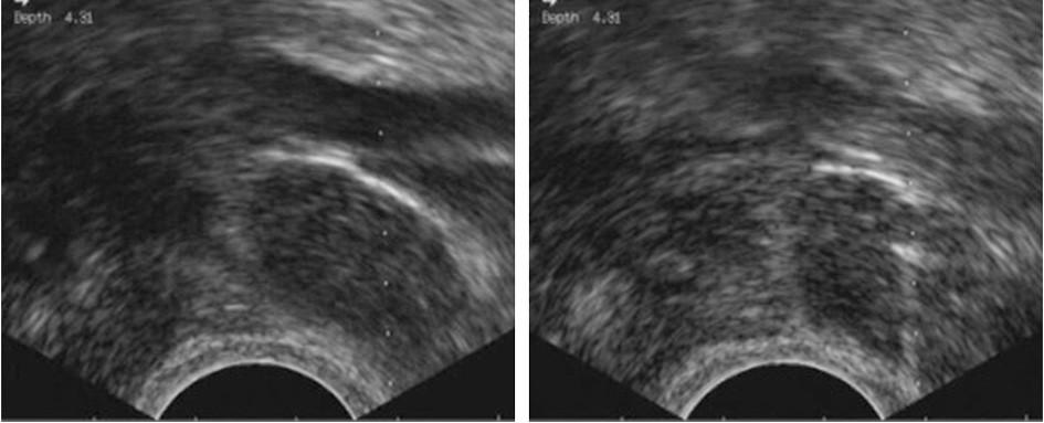 Tru-cut biopsie infiltrované uzliny v obturatorní fosse při externích ilických cévách, vaginální přístup. Ultrazvuková kontrola umožňuje přesnou vizualizaci hrotu jehly (vpravo) a bezpečné provedení výkonu.