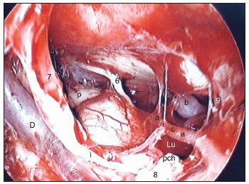 Translabyrintný prístup po odstránení tumoru vpravo – endoskopia ukazuje, že krvácanie je zastavené, pontocerebelárny priestor je vypláchnutý, čistý. Legenda: D - Dandyho véna, i - nervus intermedius, 7 - nervus facialis, 8 - zvyšok nervus cochleovestibularis, pch - plexus chorioideus, p - pons Varoli, 6 - nervus abducens, b - arteria basilaris, 9 - nervus glossopharyngeus, aica - arteria cerebellaris anterior inferior, Lu - foramen Luschkae