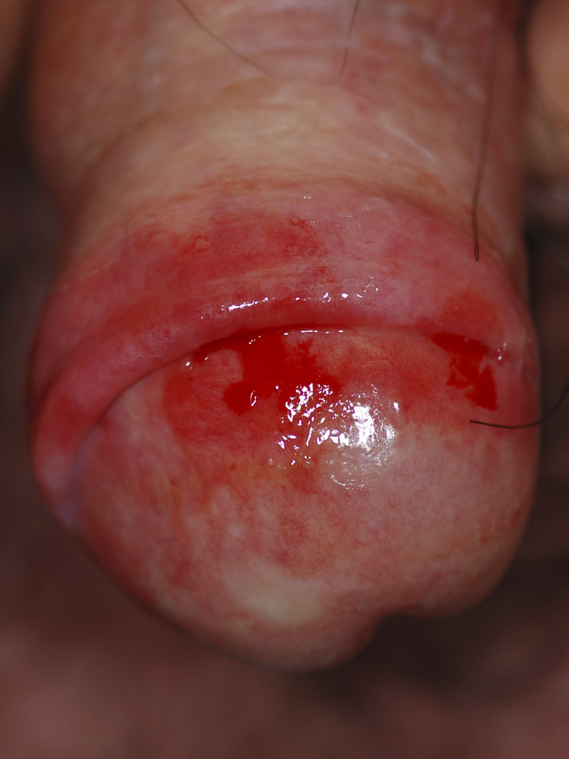 Erosive Area on the Glans Penis, Consistent with the Diagnosis of Lichen Planus