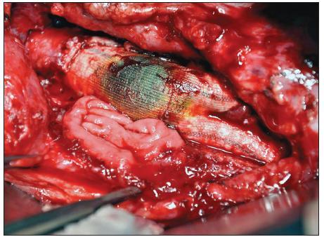 Sekundární aortoduodenální píštěl Fig. 1. Secondary aortoduodenal fistula