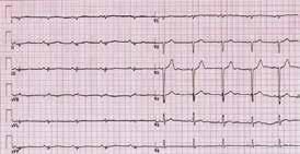EKG pacienta s arytmogenní kardiomyopatií levé komory