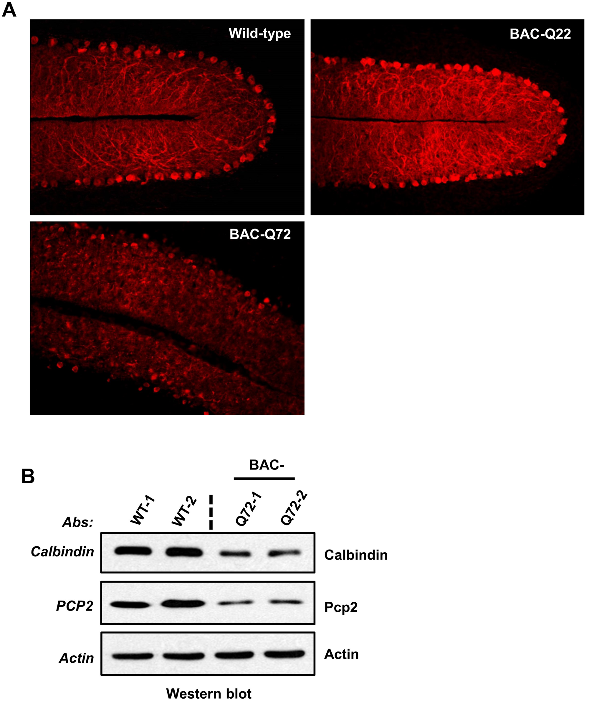 PC morphology in BAC-Q22 and BAC-Q72 mice.