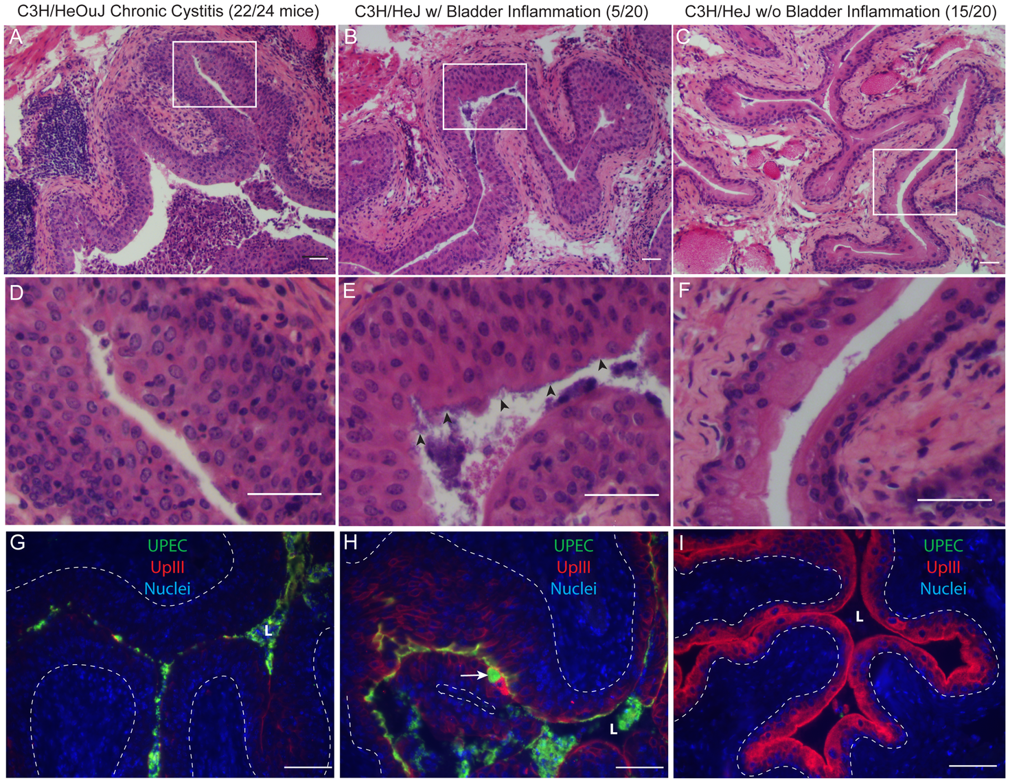Chronic bladder infection in C3H/HeJ mice is histologically distinct from chronic cystitis in C3H/HeOuJ mice.