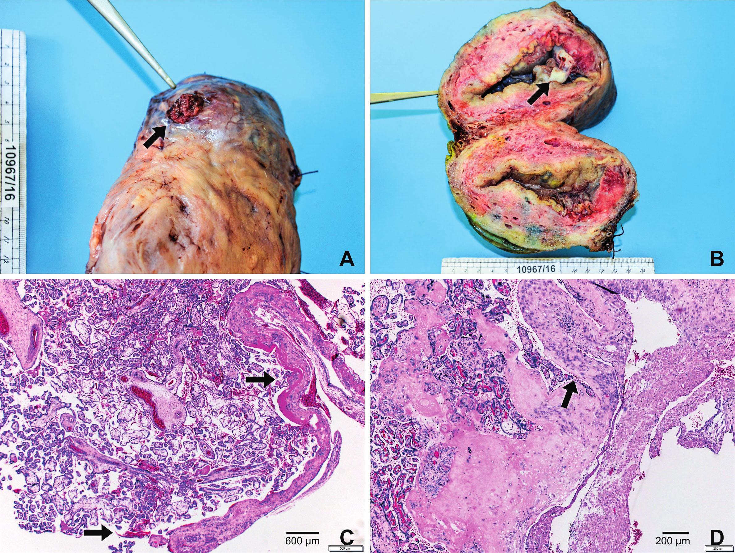 Histopatologické vyšetření A. Placenta percreta prorůstající levým rohem děložním B. Průřez dělohou v místě perkrétní placenty C. V preparátu z místa popsaného defektu ve fundu jsou struktury placenty prorůstající zčásti do subserózního vaziva a poté volně přecházející na povrch, barvení HE, zvětšení 100x D. Průřez děložní stěnou s překrvenými placentárními klky do zevní části myometria a subserózního vaziva, barvení HE, zvětšení 100