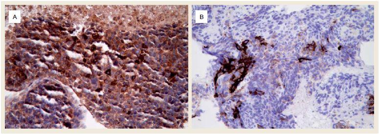 A. Silná exprese α-fetoproteinu v nádorových buňkách (imunohistochemie, původní zvětšení 400×), B. Fokální silná exprese glypicanu-3 (imunohistochemie, původní zvětšení 400×). Fig. 4. A. Strong expression of α-fetoprotein in tumour cells (immunohistochemistry, original magnification ×400), B. Focal strong expression of glypican-3 (immunohistochemistry, original magnification ×400).
