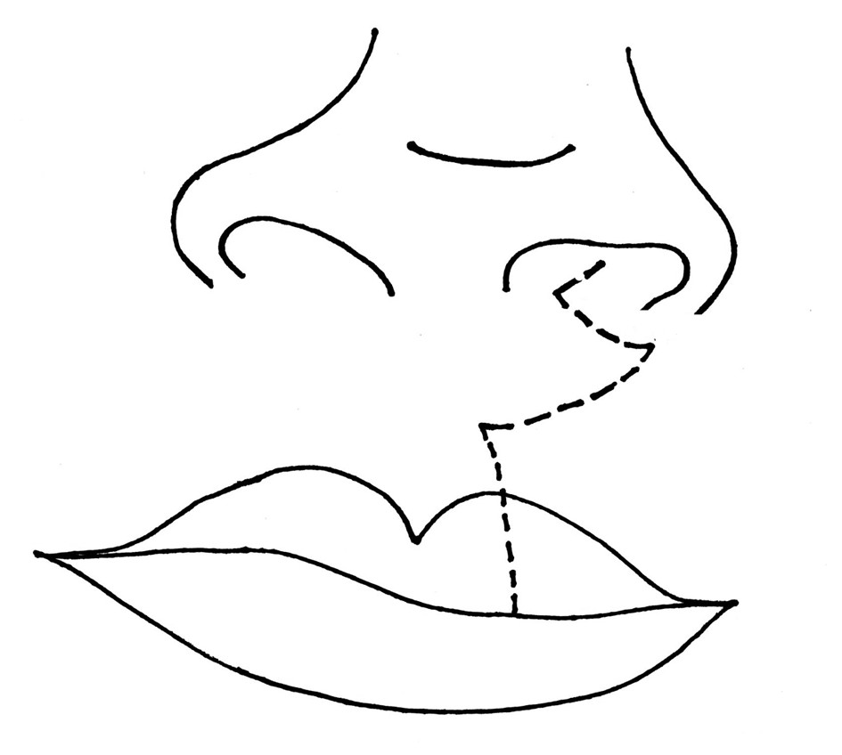 Fig. 5. Diagram of the postsurgical scar