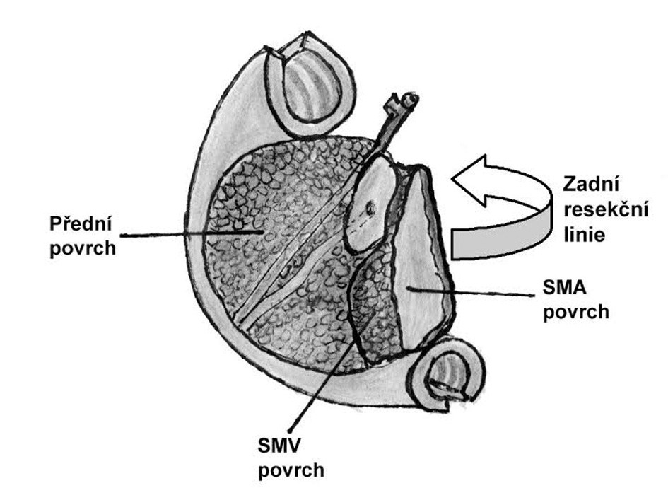 Cirkumferenční okraje v resekátu hemipankreatoduodenektomie Zahrnuje zadní cirkumferenční resekční linii, přední cirkumferenční linii/povrch a linie/povrchy směřující k véně (SMV) a arterii mesenterica superior (SMA). Fig. 2: The circumferential margins in hemipancreatoduodenectomy specimen Include the posterior circumferential resection margin, anterior circumferential margin/surface and margins/surfaces facing the superior mesenteric vein (SMV) and superior mesenteric artery (SMA).