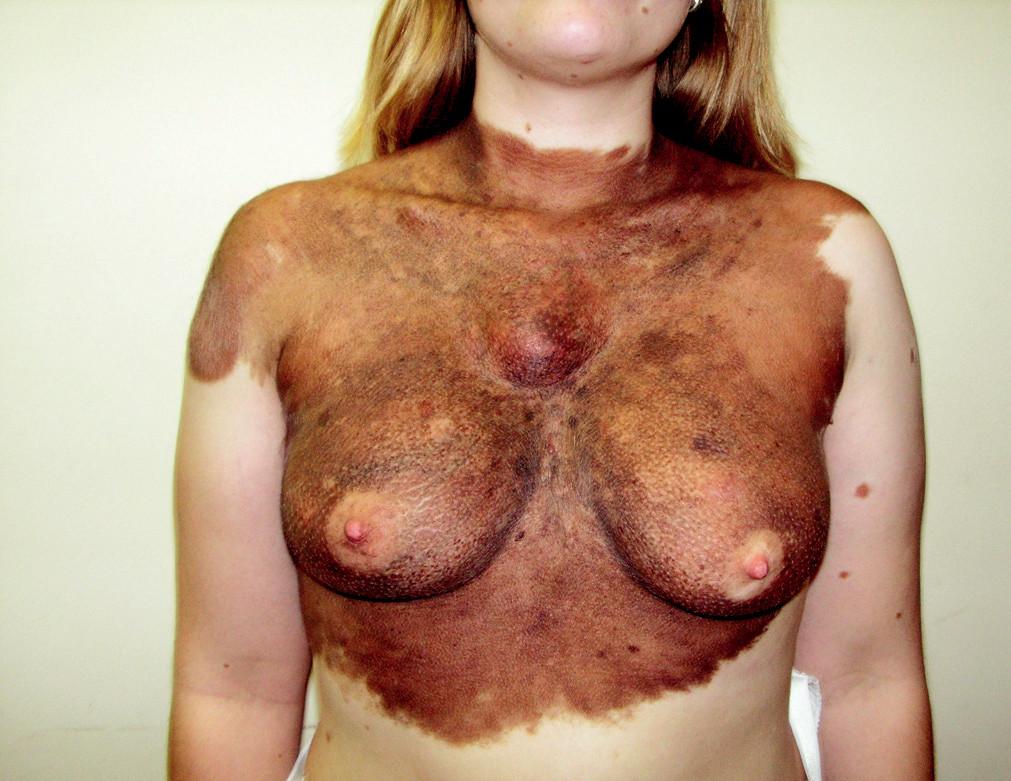 Velké kongenitální névy představují zvýšené riziko vzniku melanomu