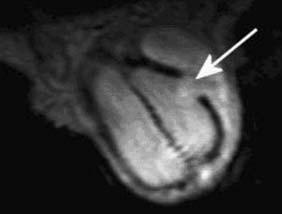 Obr. 4 a,b. USG a MRI penisu.  4a - USG penisu po traumatu - přerušení tunica albuginea s hematomem (šipka).  4b - MRI penisu u téhož pacienta, T2-obraz, potvrzení nálezu na USG, šipka ukazuje na jednoznačné přerušení tunica albuginea.