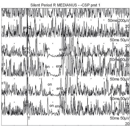 Příklad normální kožní periody útlumu snímané z m. APB po bolestivé stimulaci 1., 3. a 2 × 5. prstu (první dvě horní křivky jsou vizualizací svalové síly bez aplikace bolestivých stimulů). Fig. 1. Example of normal cutaneous silent period recorded from m. APB after painful stimulation of the 1<sup>st</sup>, 3<sup>rd</sup> and 5<sup>th</sup> finger × 2 (the first two upper curves represent visualization of muscle strength without application of painful stimuli).