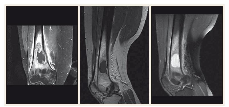 Magnetická rezonance distální diafýzy femuru a pravého kolenního kloubu.