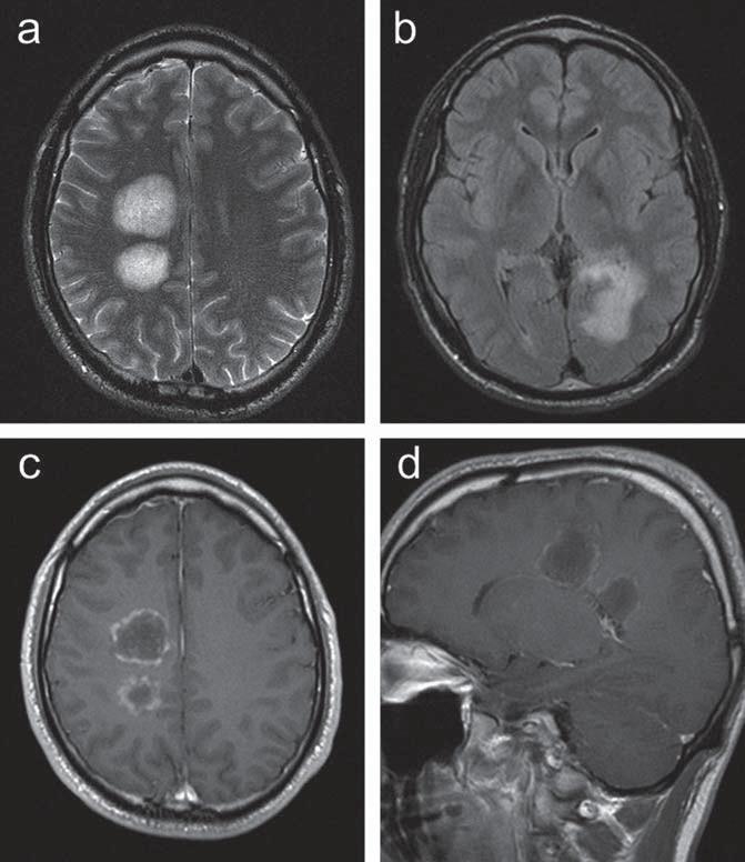 Kazuistika 1: vstupní MR vyšetření u pacienta s ložiskovým postižením supratentoriálně. (a) T2 vážený obraz v axiální rovině se zachycením dvou objemných hyperintenzních lézí v bílé hmotě centrum semiovale vpravo. (b) FLAIR zobrazení v axiální rovině s patol. zvýšeným signálem podél okcipitálního rohu levé postranní komory. (c, d) postkontrastní zobrazení v transverzální a sagitální rovině s obrazem prstenčitého sycení ložisek. Radiologická dokumentace ke vstupnímu vyšetření pacienta byla zapůjčena oddělením zobrazovacích metod Oblastní nemocnice Příbram (prim. MUDr. Petr Bleha), za její poskytnutí autoři děkují.