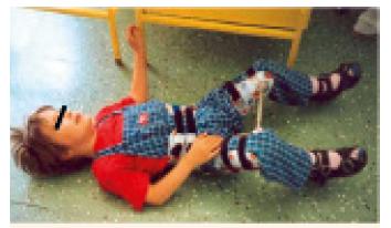 Pacient s nasazenou abdukční pomůckou (Atlanta dlaha). Fig. 4. Patient using an abduction splint (Atlanta splint).