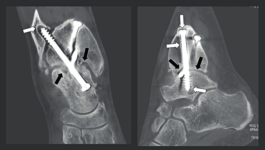 Kontrolní snímky po artrodéze kotníku.