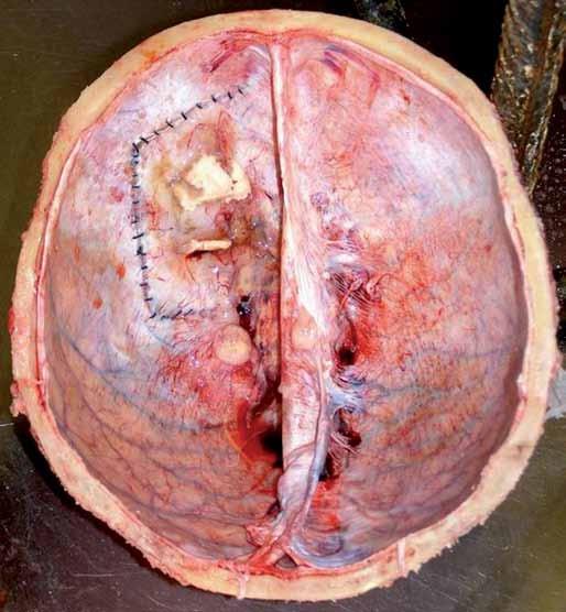 Pohled do kalvy pokryté tvrdou plenou, kde je patrná recidiva tumoru na tvrdé pleně a sutura tvrdé pleny po operačním zákroku (pitevní fotografie).