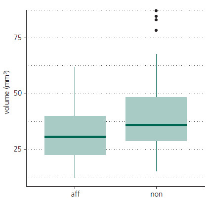 Graph 1. Tukey boxplot illustrating lower group-wise trigeminal nerve volume in affected nerves versus non-affected nerves in CTN (p < 0.001). CTN – classic trigeminal neuralgia, aff – affected side, non – non-affected side.