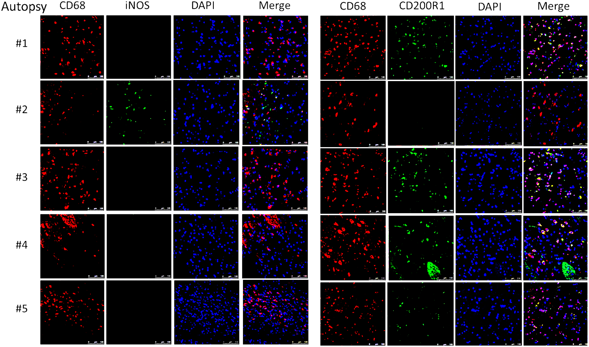 Brain immunofluorescence of autopsy specimens from patients who died of s-CNS cryptococcosis demonstrates macrophage and T-cell tissue infiltration.