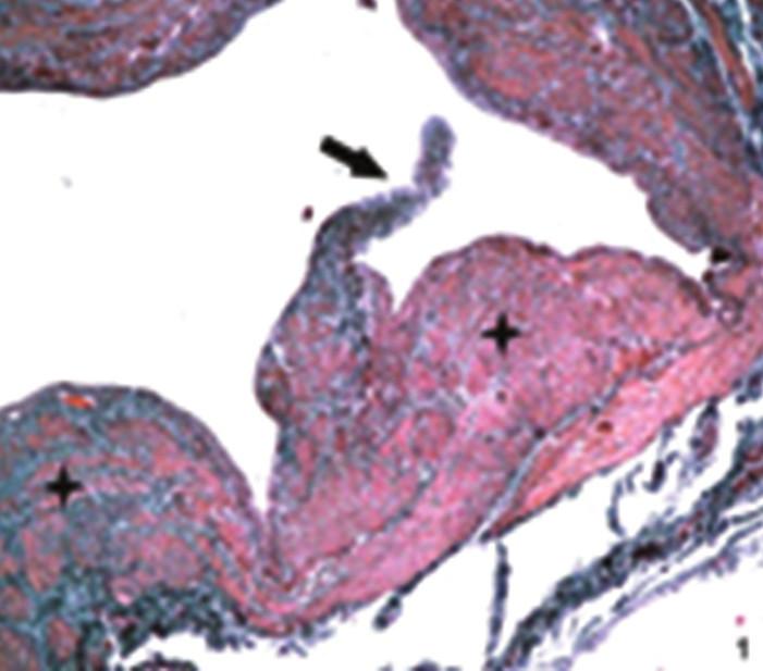Detail žíly ošetřené laserem  Příčný řez, do lumina cévy vybíhá typická žilní chlopeň (šipka). Stěna žíly je místy v oblasti tunica media (+) polštářovitě ztluštělá. Barvení orceinem, zvětšení 10x5. Fig. 4: Detail of vein treated with laser  Cross-section, typical venous valve protrudes into the vessel lumen (arrow). The venous wall is, sporadically in the area of tunica media (+), pillow-like thickened. Dyed with orcein, magnification 10x5.