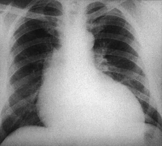 RTG hrudníku ukazuje dilataci vzestupné aorty a srdeční rozšíření u aortální regurgitace.