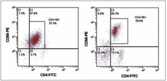 Flowcytometrická analýza nádorové populace CD4<sup>+</sup>56<sup>+</sup>. Společná populace CD4<sup>+</sup>CD56<sup>+</sup>, vlevo pro případ 1 a vpravo pro případ 2.