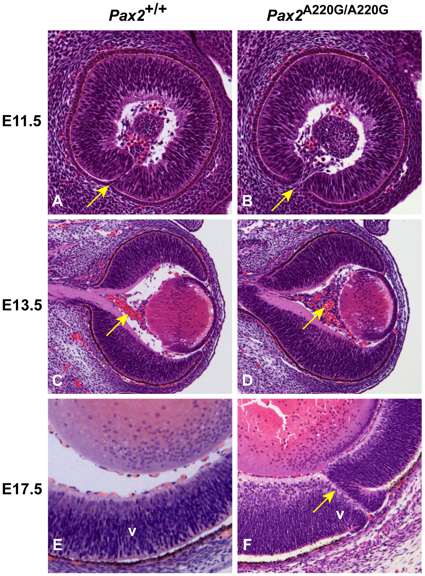 Histologic sections of <i>Pax2<sup>+/+</sup></i> and <i>Pax2<sup>A220G/A220G</sup></i> mouse eyes at three embryonic time points.