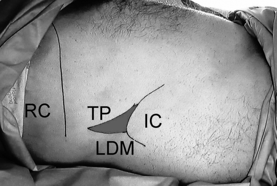 Anatomical landmarks for transversus abdominis plane block