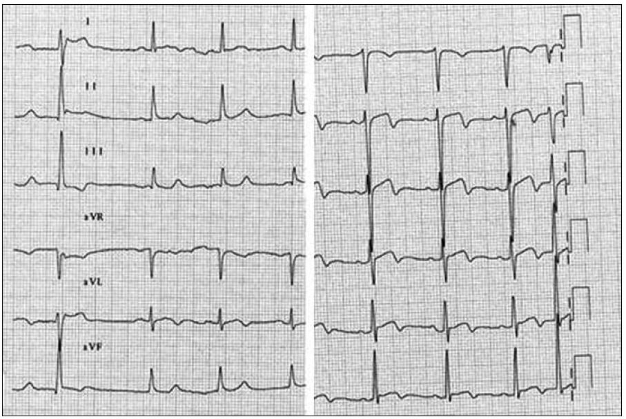 EKG po přijetí do nemocnice.