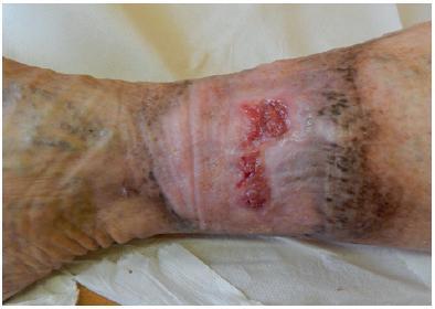 Ikonografie ulcerace na bérci vpravo po sedmi týdnech lokální terapie Altrazealem