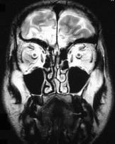 Kazuistika 2: MR mozku, koronární řezy, T2 vážená sekvence u pacienta s poúrazově vzniklou anosmií. Hypersignální ložiska na bazi frontálního laloku vpravo a paramediálně i na bazi levého laloku.