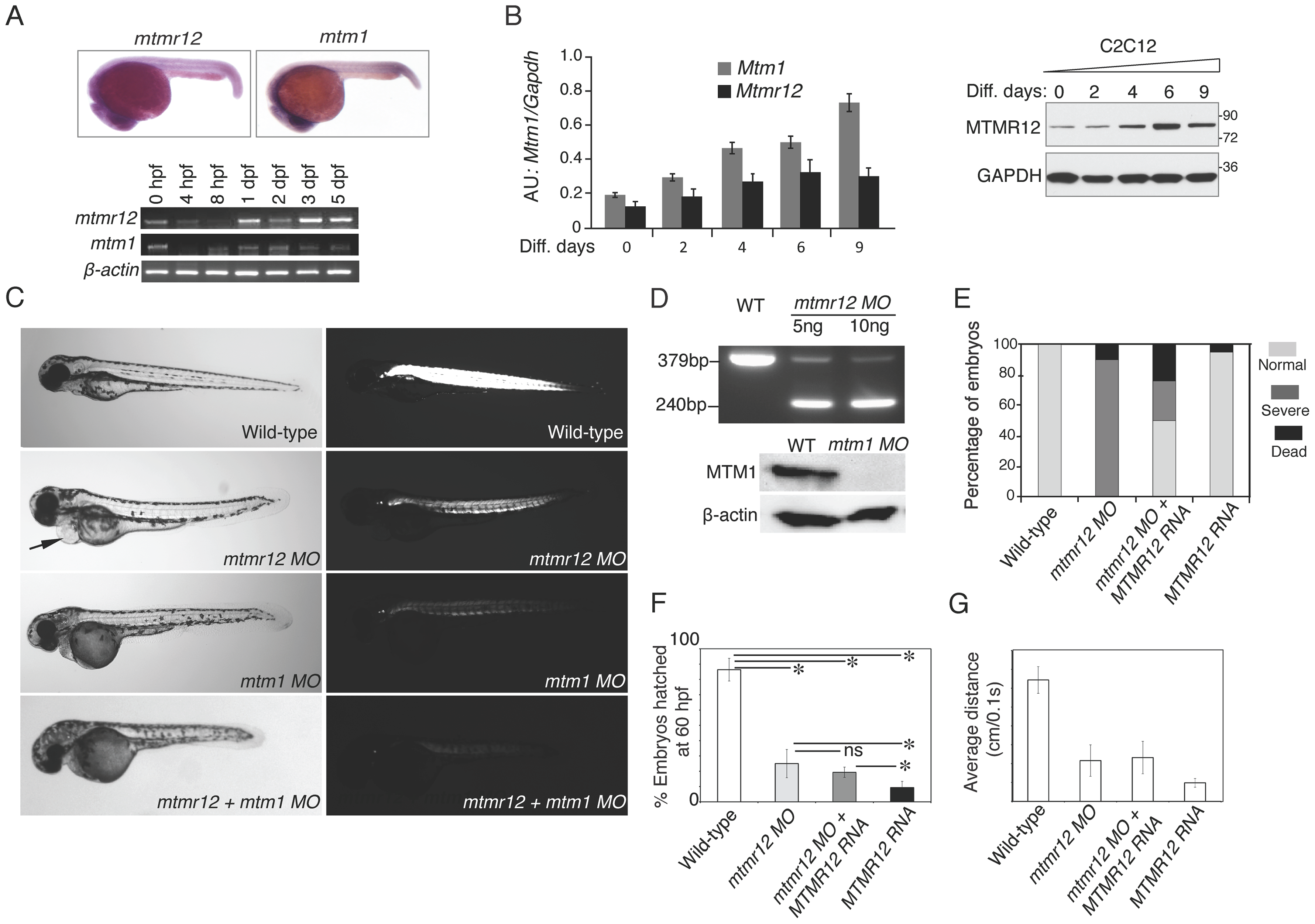 Expression patterns and morpholino-based knockdown of <i>mtmr12</i> in developing zebrafish.