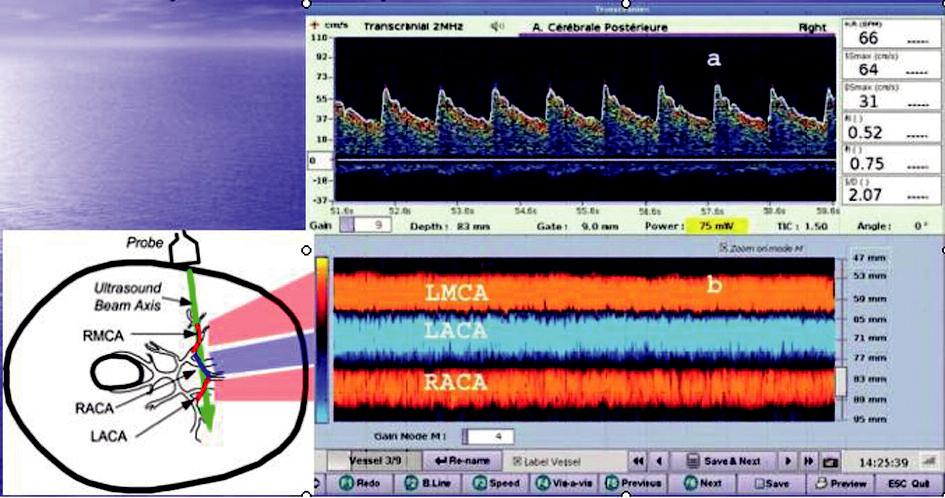 Transkraniální dopplerovský záznam průtoku krve intrakraniálními cévami v M-modu Hloubka příslušné arterie se v M-modu zobrazuje na vertikální ose, čas na ose horizontální a intenzita posunu dopplerovského signálu jako intenzita barvy. Směr toku k sondě je současně kódován červeně, od sondy modře. LMCA – a. cerebri media l.sin, LACA – a. cerebri anterior l.sin, RACA – a. cerebri anterior l.dx.