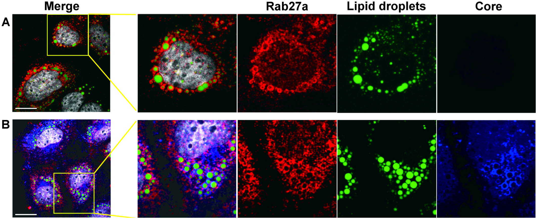 Subcellular localization of Rab27a.