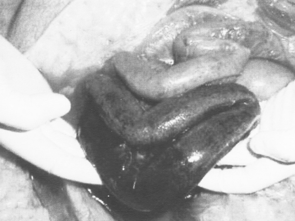 Gangréna tenkého čreva – venózny uzáver