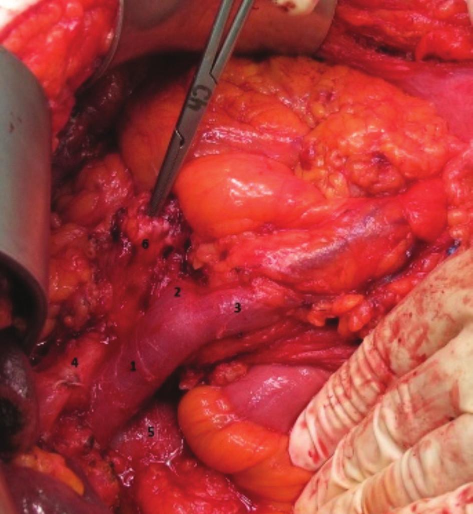 Pankreatoduodenektomie, stav po odstranění hlavy pankreatu s duodenem (1.v. portae, 2. v. lienalis, 3. v. mesenterica superior, 4. a. hepatica propria, 5. v. cava inferior, 6. pahýl pankreatu s nástrojem v pankreatickém vývodu)