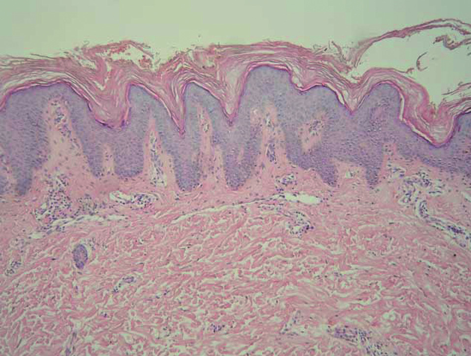 Histologie – případ 2: výrazná hyperkeratóza, akantóza a výrazná papilomatóza, nepatrná hyperpigmentace stratum basale epidermálních výběžků (HE, zvětšení 100krát).