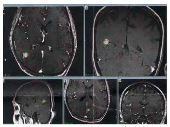 metastatické postižení mozku