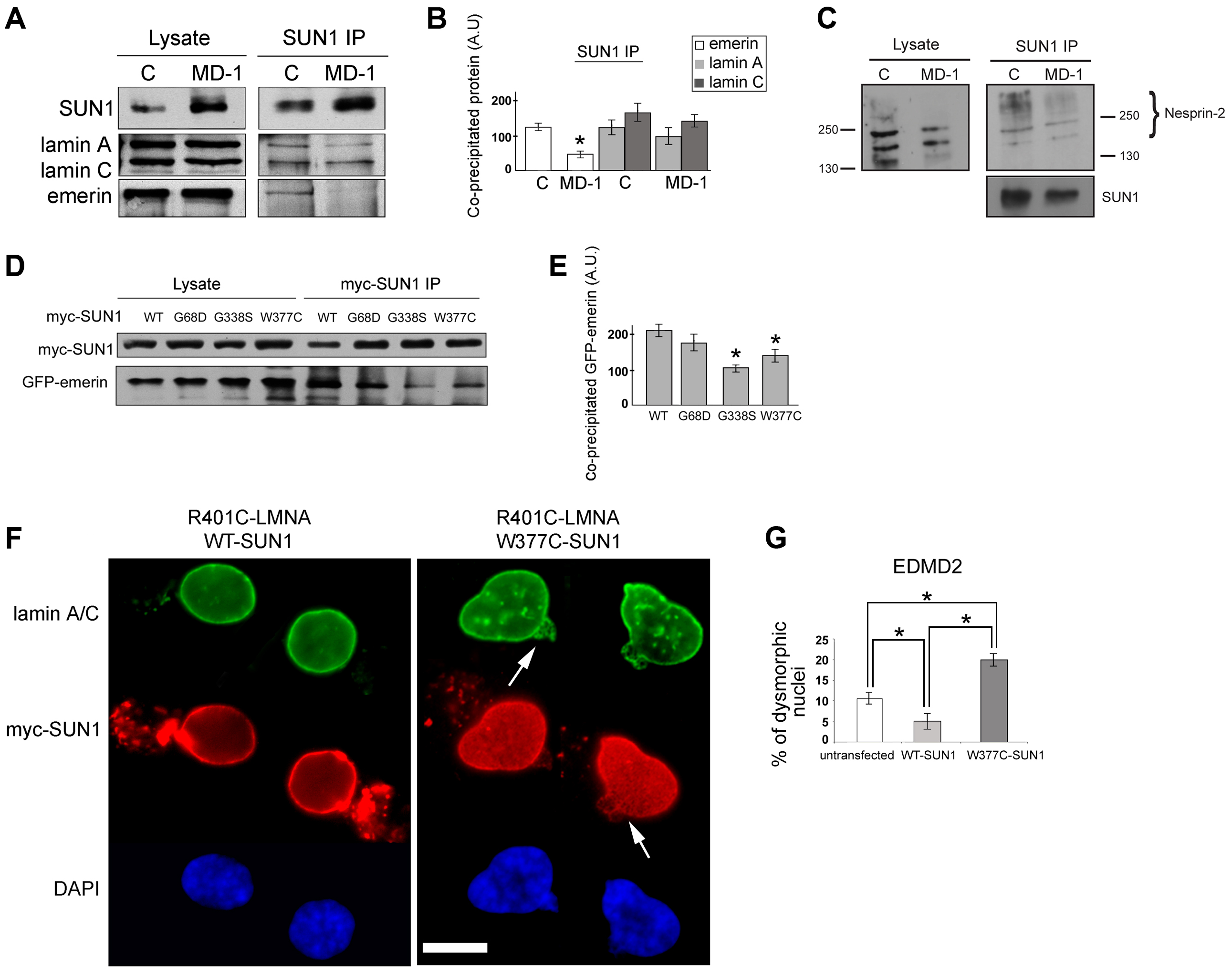 Emerin binding to p.G68D/p.G338S SUN1 is reduced <i>in vivo</i>.