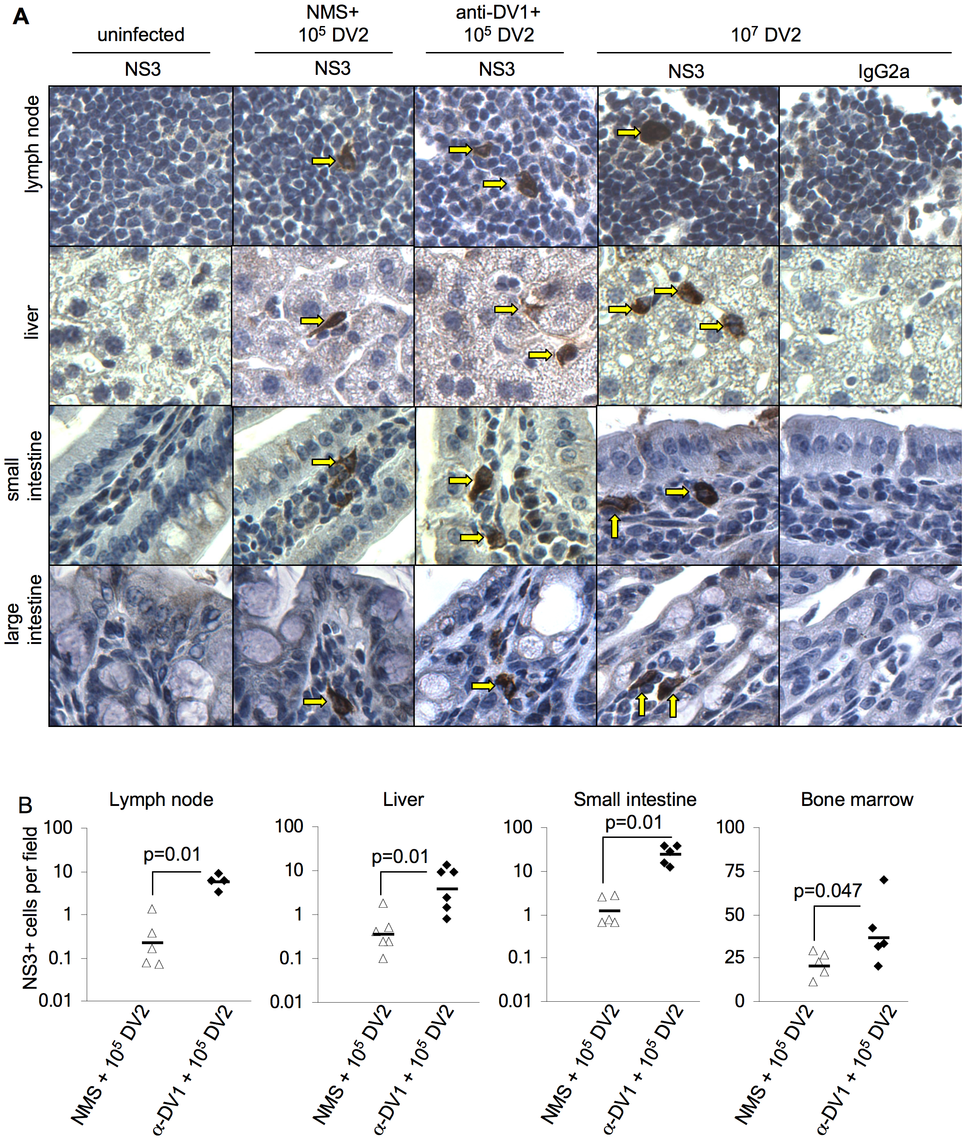Detection and quantification of DV-infected cells with or without antibody-dependent enhancement.