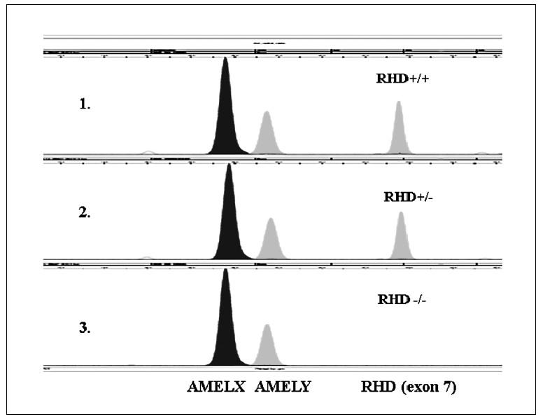 Ukázka rozlišení <i>RHD</i>  genotypů pomocí minisekvenace (SNaPshot). 1. V první řadě je ukázka <i>RHD</i> pozitivního homozygota. 2. V druhé řadě je ukázka <i>RHD</i> heterozygota. 3. Ve třetí řadě je ukázka <i>RHD</i> negativního homozygota.