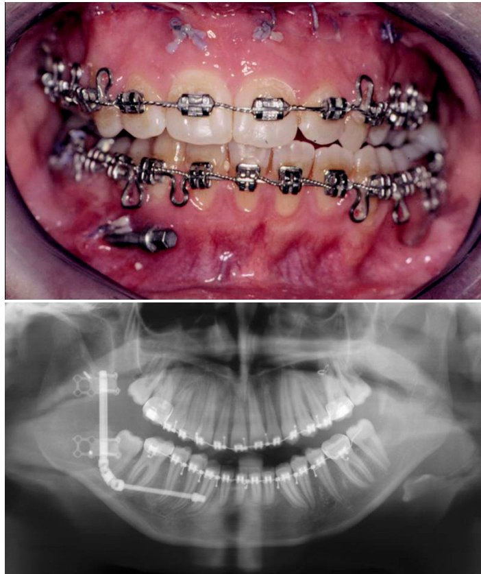 5a and 5b. Submucosally positioned intraoral distractor