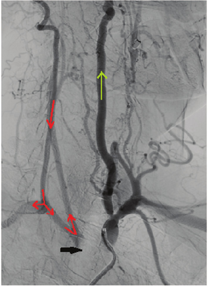 Černá šipka − uzávěr stentu truncus brachiocephalicus, žlutá šipka − ortográdní tok v a. vertebralis l.sin., červená šipka − retrográdní tok v. arteria vertebralis l. dx. směrem do a. subclavia a a. carotis com. l. dx. Fig. 1: Black arrow − occlusion of the truncus brachiocephalicus, yellow arrow − orthograde flow in the left vertebral artery, red arrow − retrograde flow in the right vertebral artery to the right subclavian artery and right common carotid